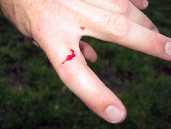 bite-_other_side_of_same_finger
